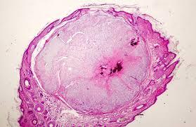 ferret chordoma under a microscope